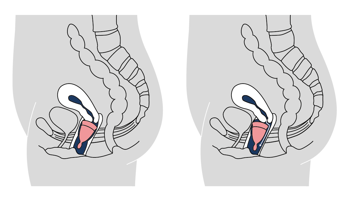 LUNACUP menstrual cup position of the cup
